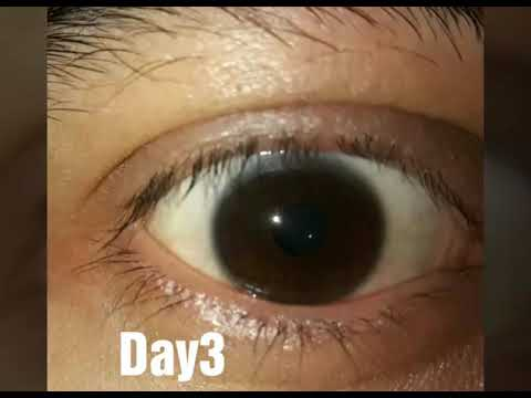 Brown to Hazel green eye color change results(first 8 days... next coming soon 🙂 )