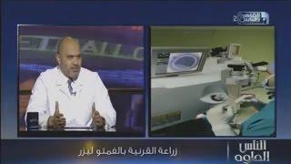 عملية زراعة القرنية باستخدام الفيمتو ليزر  دكتور أشرف سليمان مدرس طب و جراحة العيون