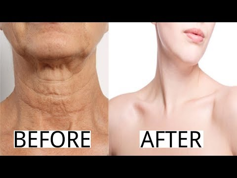 How To Get Rid of Neck Wrinkles & Chest Skin with Natural Home Remedies