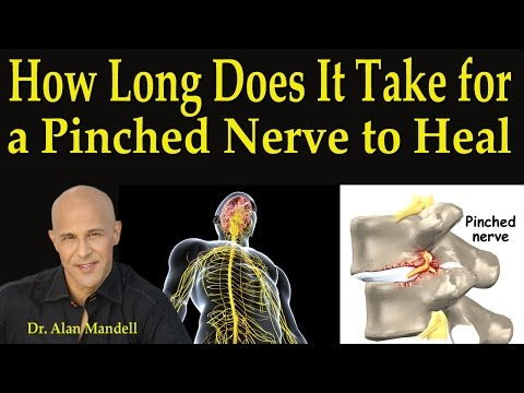How Long Does It Take For A Pinched Nerve to Heal - Dr Mandell