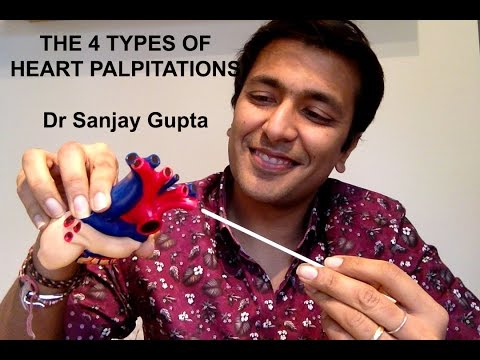 The 4 types of heart palpitations