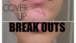 Cover Up Unwanted Pimples With Makeup