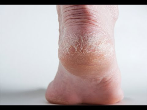 How to Get Rid of Dry Cracked Feet - Dry Cracked Heels Remedy