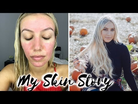 HOW I CURED MY ACNE ROSACEA, BEFORE & AFTER, MY SKIN STORY, REDNESS, ACNE TREATMENT  Scarlett London