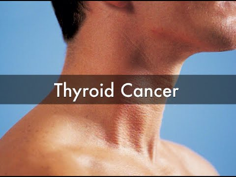 Thyroid Cancer | Thyroid Cancer Symptoms