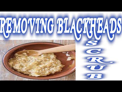 Remove Blackheads Quickly!!!  natural way (  Blackhead scrub)