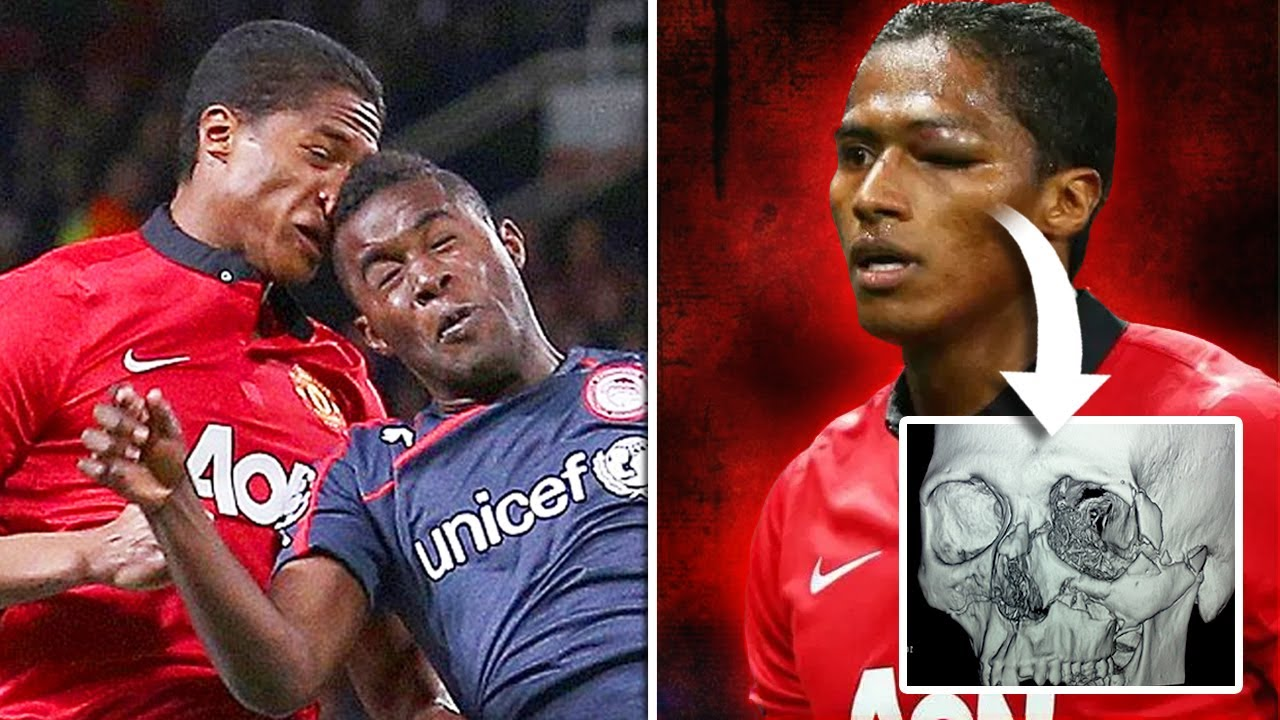 10 Injured Players Who DEFIED The Odds!