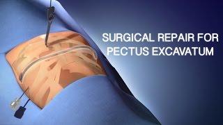 Pectus Excavatum Surgical Repair | A Cincinnati Children's Medical Animation