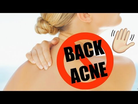 How to Get Rid of Body Acne + DIY Apple Cider Vinegar Toner!