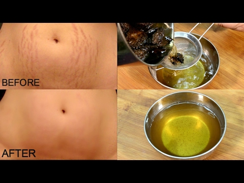 Get Rid Of Stretch Marks In 30 Days/ Stretch Marks Removal *Simple Beauty Secrets*
