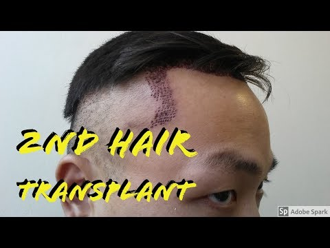 I AM NOT GETTING A 2ND HAIR TRANSPLANT.