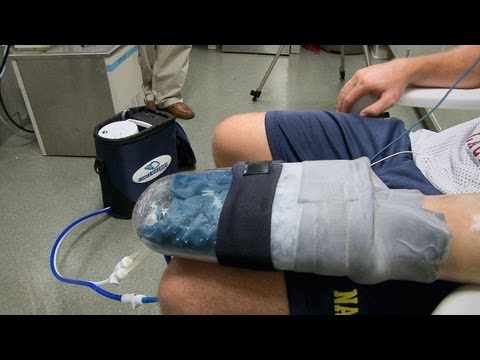 Stanford Researchers' Cooling Glove Boosts Exercise Recovery