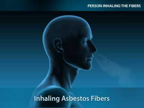 Asbestos Exposure & Risks of Inhaling The Fibers