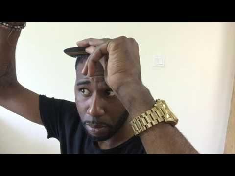 Febron Review - Thinning hair on black men  quick solution
