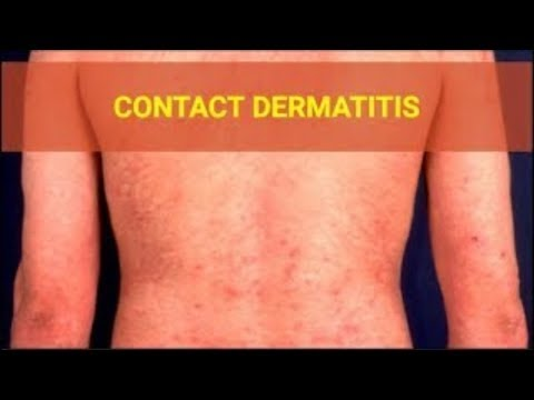 Contact dermatitis Symptoms – Causes symptoms and Pictures of Contact dermatitis on Face Body