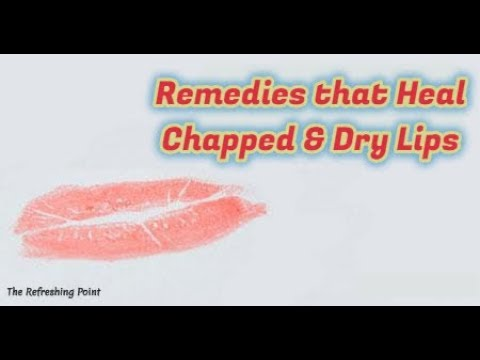 Heal Dry Chapped Lips Naturally - Easy Ways to Cure Chapped Lips -Best Natural Remedies for Dry Lips