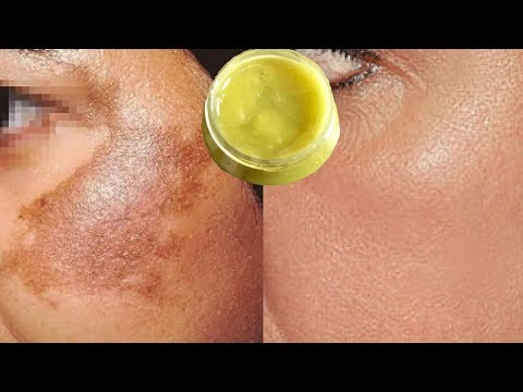 DIY Pigmentation Cream | How To Remove Pigmentation, Dark Spots & Acne Scars Easily At Home