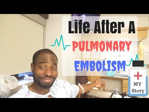Life After A Pulmonary Embolism (My Story) | Pulmonary Embolism Treatment