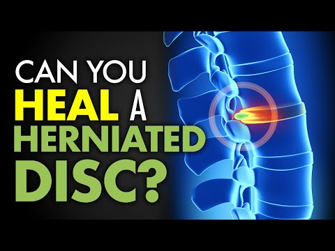 Can You Heal a Herniated Disc?