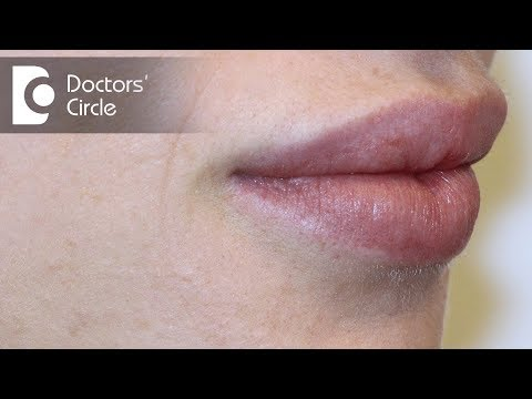 Causes of white spots on lips?-Dr. Nischal K