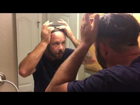 Hair Replacement Hair System Review Cleaning the front hairline Very important