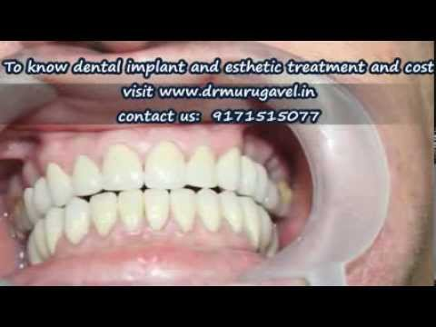 SMILE MAKEOVER WITH DENTAL IMPLANTS- CHENNAI