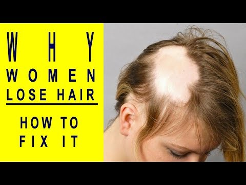 5 Reasons Women Lose Hair And How To Fix It | Living Healthy is Living Wealthy