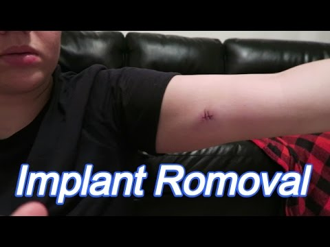 Implant Removal!!!(7-22-16) Day 814