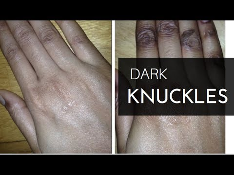 💅🏽  Dark Knuckles: How I Got Rid of Them For Good! 💅🏽 Skin care Natural Remedy 2017
