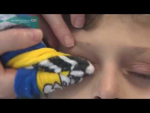 How to clean the eyelids in children and babies