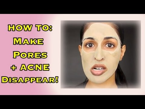 Deep Clean Your Pores - Make Pores Disappear and Clear Acne!
