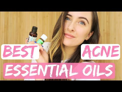 My Favourite ESSENTIAL OILS for ACNE\CLEAR SKIN