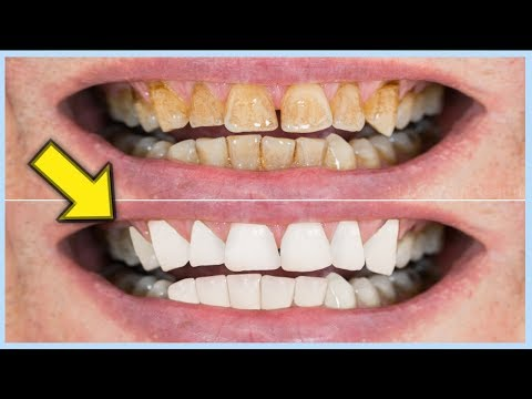 Removing plaque on Teeth By 5 Surprising Natural Way at Home || Removing Plaque Naturally