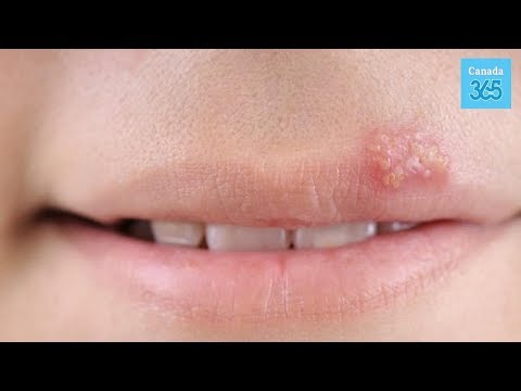 5 Home Remedies for Cold Sores - Canada 365