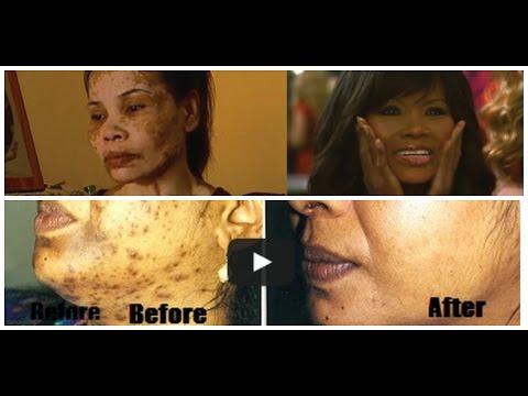 Natural Skin Lightening Agents  || Kojic Acid