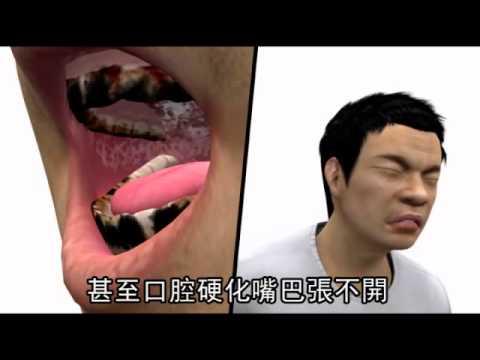 口腔癌患者 9成嚼檳榔--蘋果日報 20141126