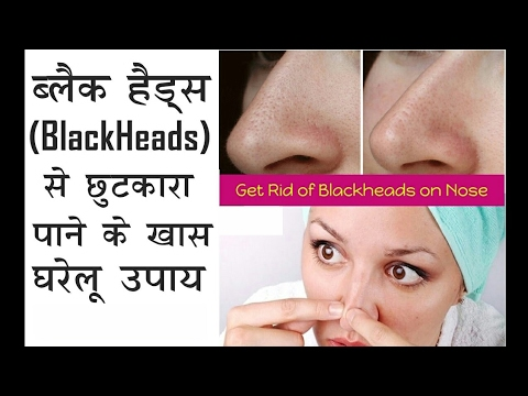 How to get rid from Blackheads || Tips for clean and fair skin