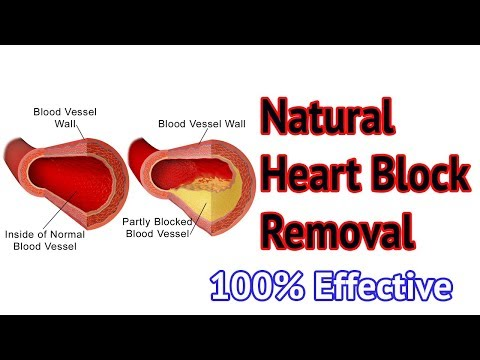 Natural Medicine for ANGIOPLASTY