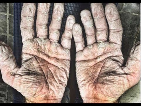 How To Remove Wrinkles From Your Hands Naturally - Best Home Remedies