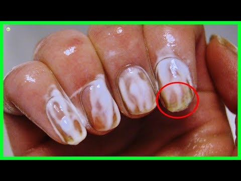 Rub A Little Bit Of Toothpaste On Your Nails For Several Minutes - The Final Result Is So Stunning
