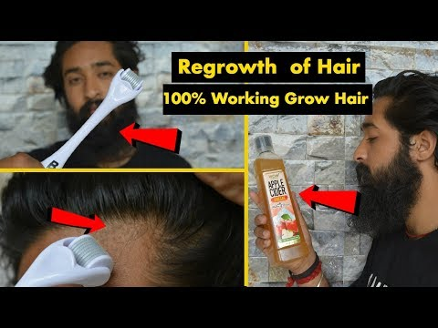Hacks for Regrow Hairline And Hair  in Hindi 100% Working