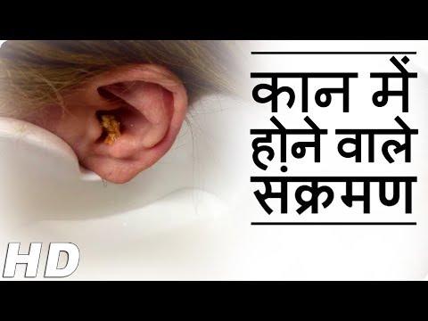 Home Cure Remedies For Ear Infection | Kaan Ke Dard Ka Ilaj - कान में दर्द का  इलाज By Stay Healthy
