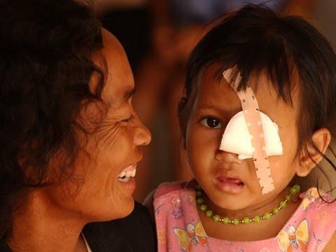 Seva gifts of sight in Cambodia.wmv