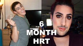 6 month hrt update mtf transgender timeline newz worlds worlds