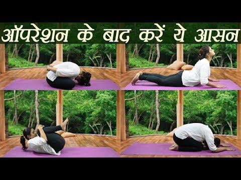 Yoga after Cesarean Delivery | Shashankasana | Yoga Mudrasan | Bhujangasana | Boldsky