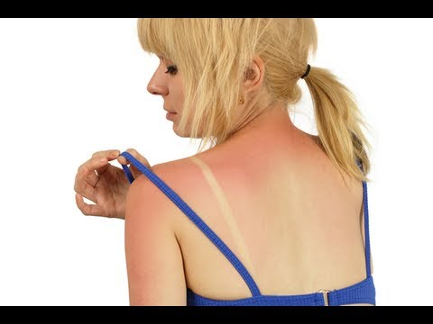 How to Treat Blistered Sunburn - Sunburn Blisters Treatment
