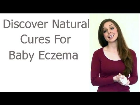 Cure Baby Eczema With Natural Methods