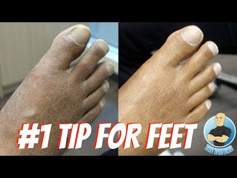 BETTER FEET INSTANTLY!!! Routine Foot Care Advice