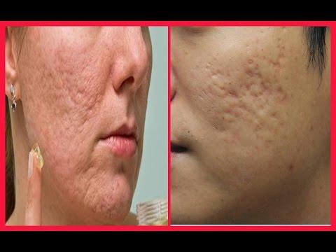 चेचक, मुहांसे के गढ़्डो को भरने का इलाज - How to Remove Holes From Face