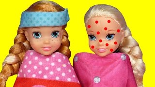 Toddler is SICK ! Elsa & Anna - CHICKENPOX - The other PRETENDS ? Who